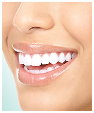 Cosmetic Dentist Reedsburg WI | Smile makeovers with veneers